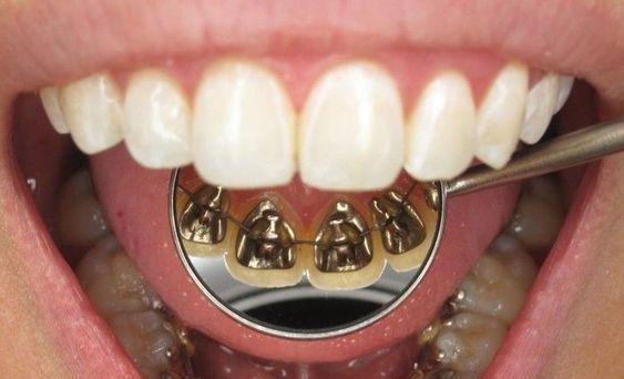 Brackets linguales en el centro odontológico H&M en Guayaquil, Durán, Quito y Babahoyo