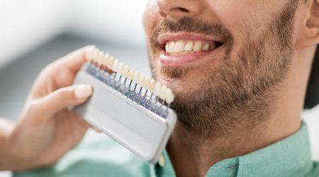 Estética dental con profesionales en H&M
