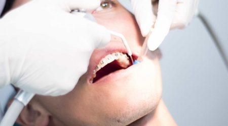 Pulpotomía en Centro Odontológico H&M