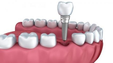 Tratamiento odontológico con Implante Molar en H&M
