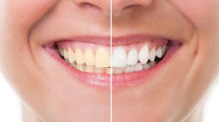 Blanqueamiento dental en guayaquil