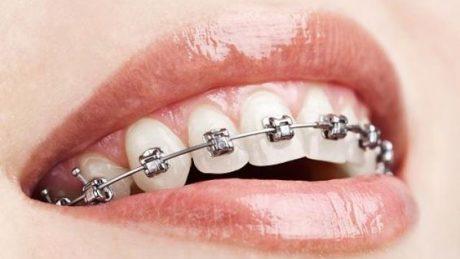 Brackets de autoligado en el centro odontológico H&M en Guayaquil, Durán, Quito y Babahoyo