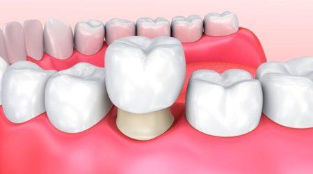 Coronas de zircoinio en H&M, centro odontológico