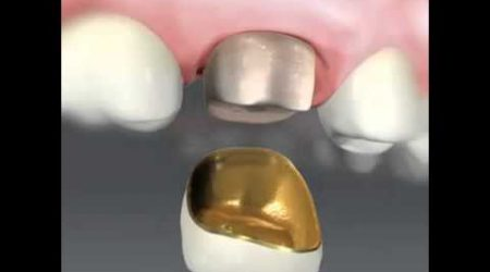 corona-metal-porcelana